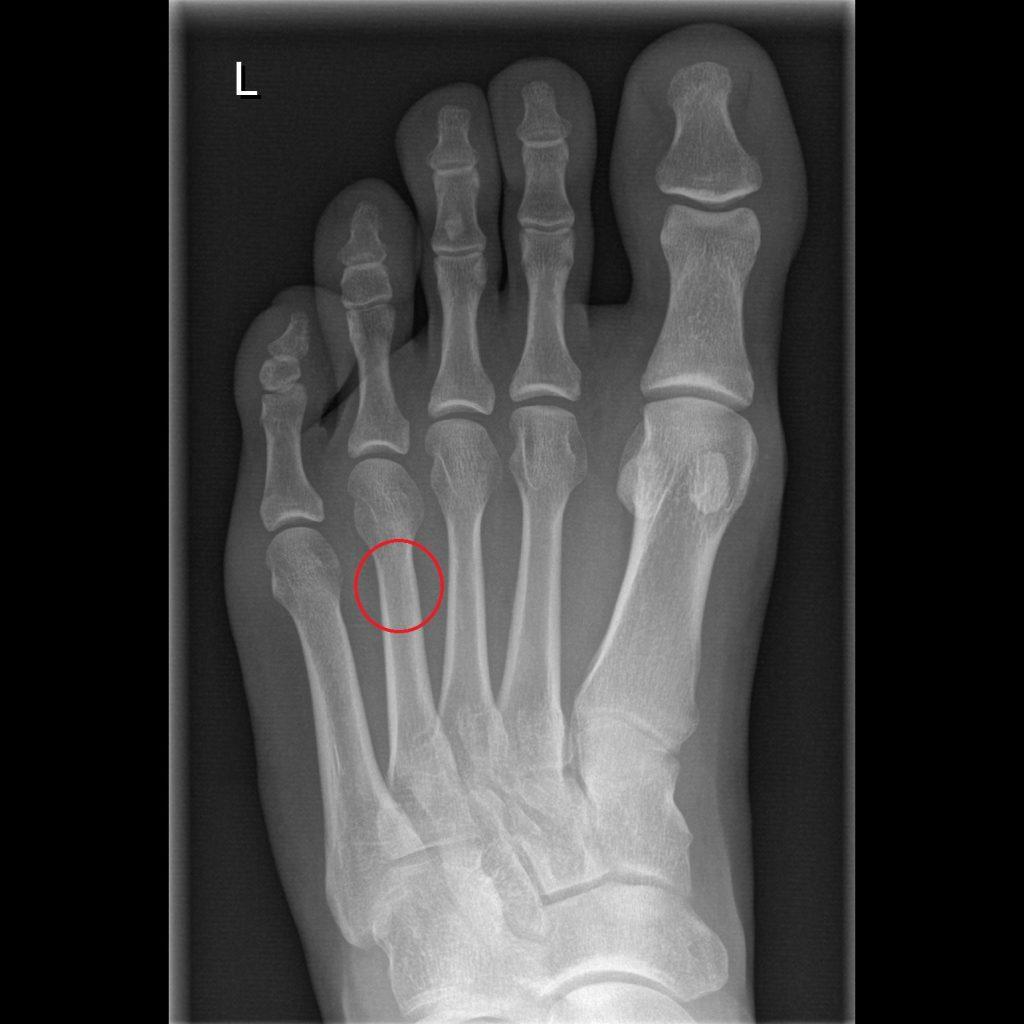 Ermüdungsbruch Stressfraktur dumpfer Schmerz Fuß Mittelfuß