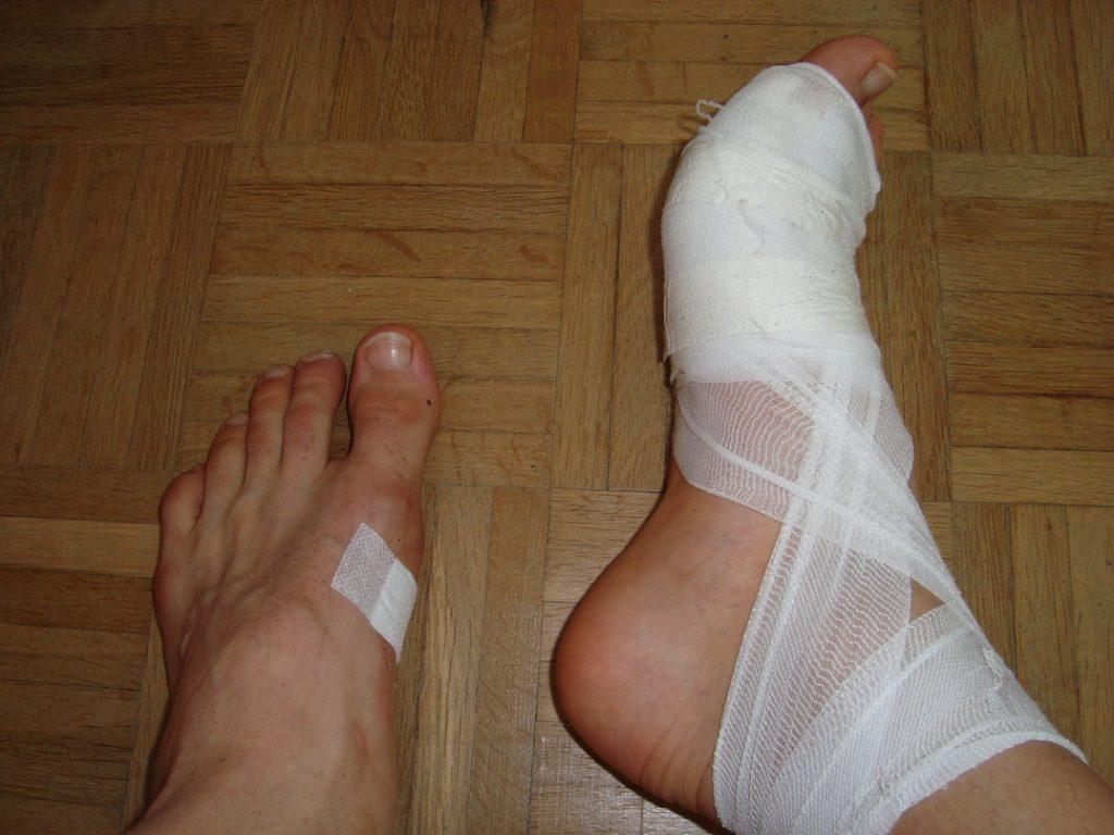 Triathlon Hofheim Verletzung Fuß