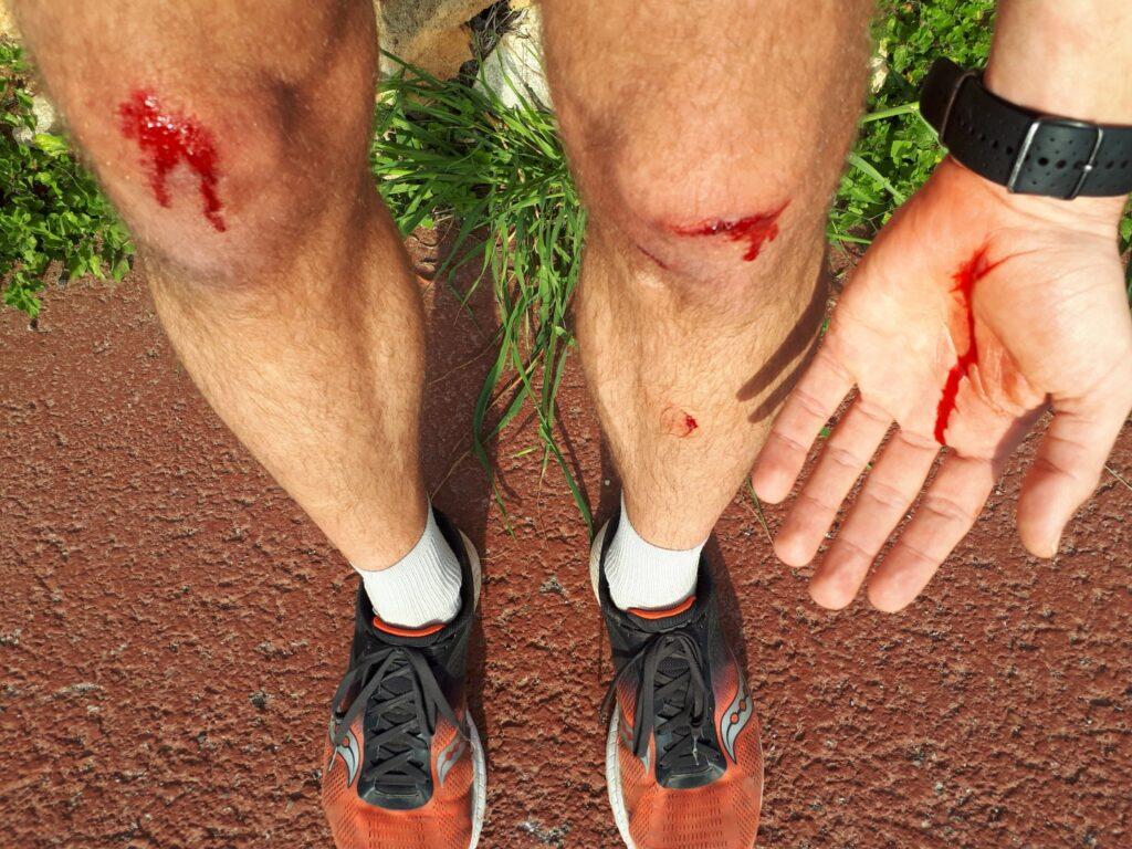 Sturz Blut Cami de Cavalls Menorca